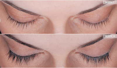 Latisse Thicker Longer Eyelashes Gilbert