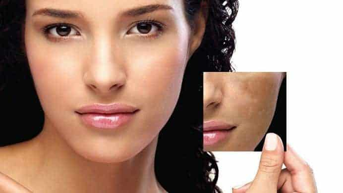 Best Natural Treatment For Face Pigmentation
